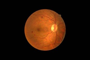 Damaged retinas, such as the one highlighted here, could eventually be replaced by artificial ones made from 2D materials