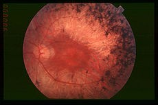 Fundus of patient with retinitis pigmentosa, mid stage