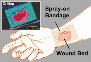 The transparent liquid bandage displays a quantitative, oxygenation-sensitive colormap that can be easily acquired using a simple camera or smartphone Credit LiWellman Center for Photomedicine