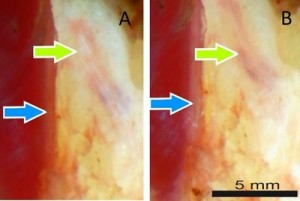 The blue arrow highlights a vertical structure A, which appears whiter after rotating the polarizers B The opposite occurs at the oblique structure green arrow indicating nerve tissue Image Credit Kenneth Chin, Academic Medical Center