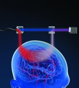 By splitting and then recombining a laser beam, the device is able to measure blood flow inside the brain Image by LetPub