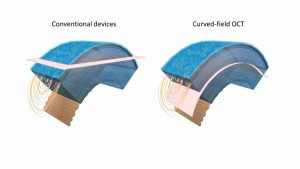 Conventional and curved-field OCT Traditional imaging approaches acquire a flat slice pink that crosses through several corneal layers at once, limiting the field of view left The new curved-field OCT approach matches the curvature of the cornea to provid