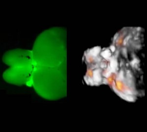 The picture shows the strongly light-scattering structure of the zebrafish brain The fluorescence image on the left shows that optical microscopy cannot deep signals The optoacoustic image on the right permits high-resolution and three-dimensional informa