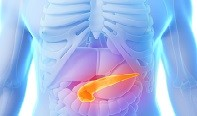 Light scattering spectroscopy detects pancreatic cancer