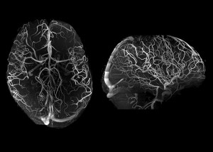 7T angiography in late life depression patients with the Tic-Tac-Toe RF coil system and without the use of invasive contrast agents While not feasible at 3T, 7T super high-resolution acquisitions voxel size is 02 mm in all directions significantly improve