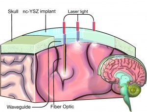 An illustration showing how the Window to the Brain transparent skull implant created by UC Riverside researchers would work