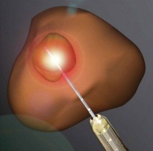 MRI-Guided Focal Laser Ablation Viable prostate cancer treatment