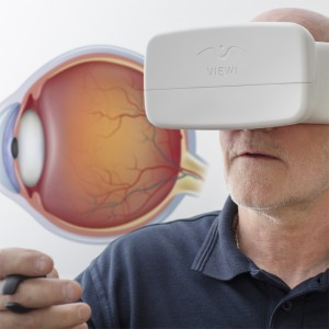 Viewi Optical ConceptAt-Home Testing for Glaucoma