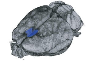 A digital micro-CT reconstruction of a rats brain This rats secondary motor cortex was surgically removed highlighted in blue, which did not affect the animals movement, but did result in a total loss of movement-related signals in the visual cortex