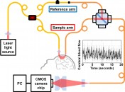 Interferometric Diffusing Wave Spectroscopy Measures Brain Blood Flow